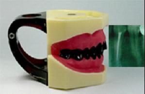 口腔X线摄片模型