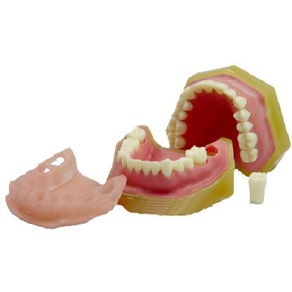 标准牙颌模型C