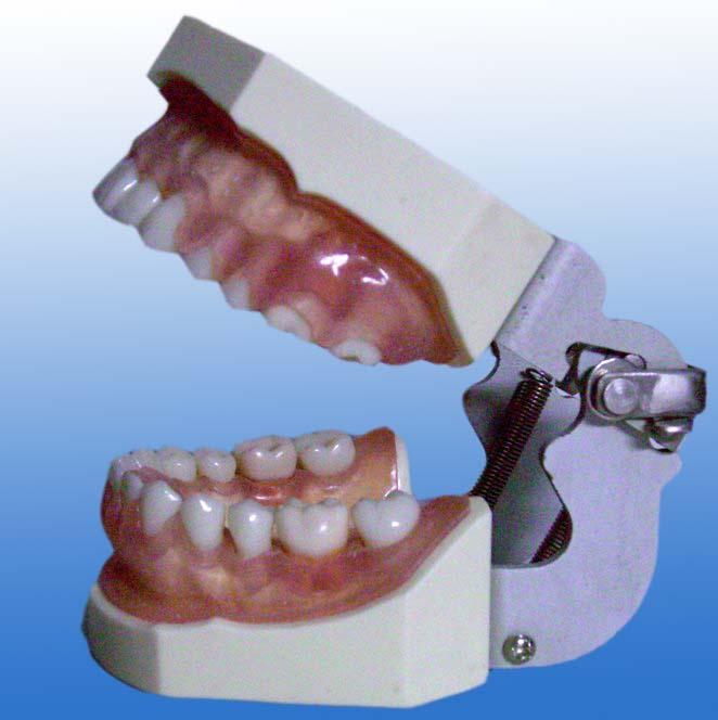 牙龈病模型
